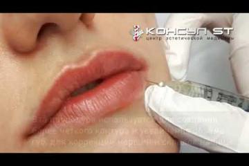 Embedded thumbnail for Контурная пластика губ