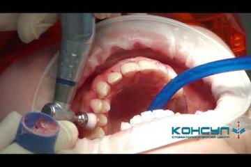 Embedded thumbnail for Профессиональная гигиена полости рта. Все этапы.