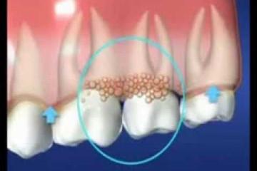 Как лечить в домашних условиях зуб