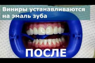 Embedded thumbnail for Что такое виниры?