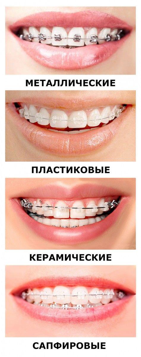 виниры на зубы цена где купить